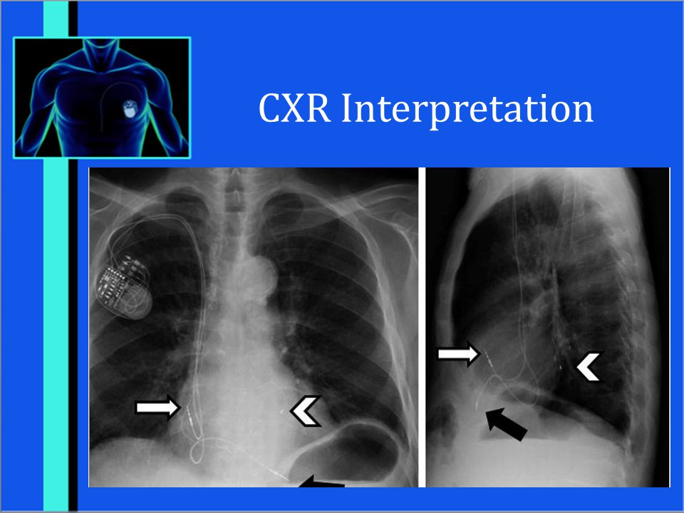 CXR Interpretation Male with Bi-V pacemaker. White arrow is RA lead.