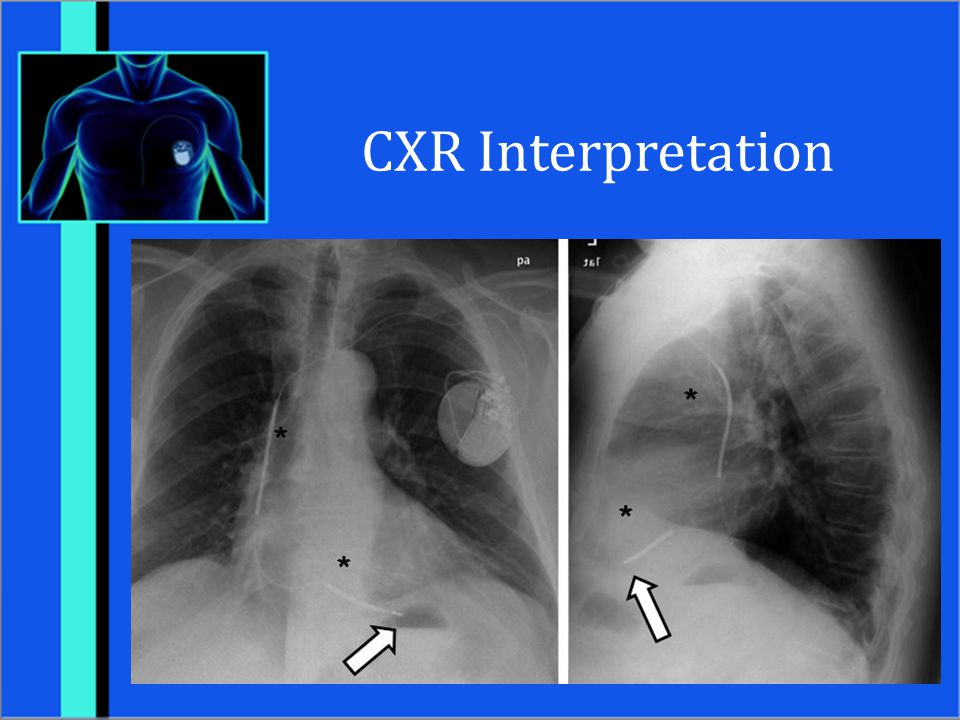 CXR Interpretation Patient with ICD.