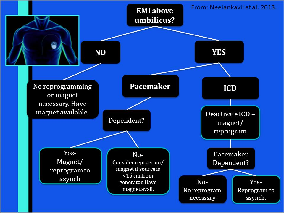 EMI above umbilicus NO YES Pacemaker ICD