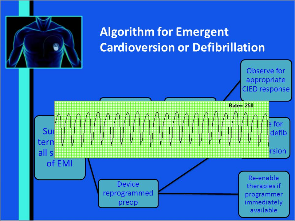 Algorithm for Emergent Cardioversion or Defibrillation