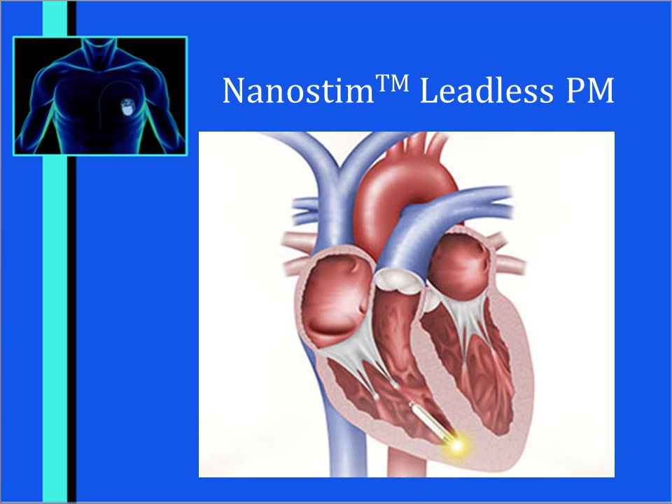 NanostimTM Leadless PM