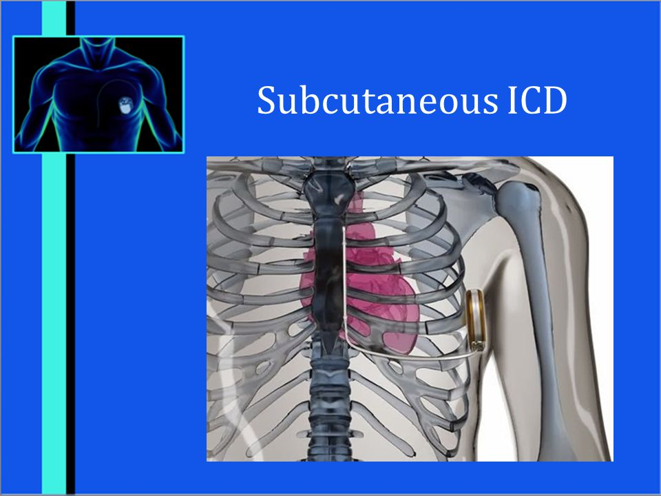 Subcutaneous ICD Boston Scientific