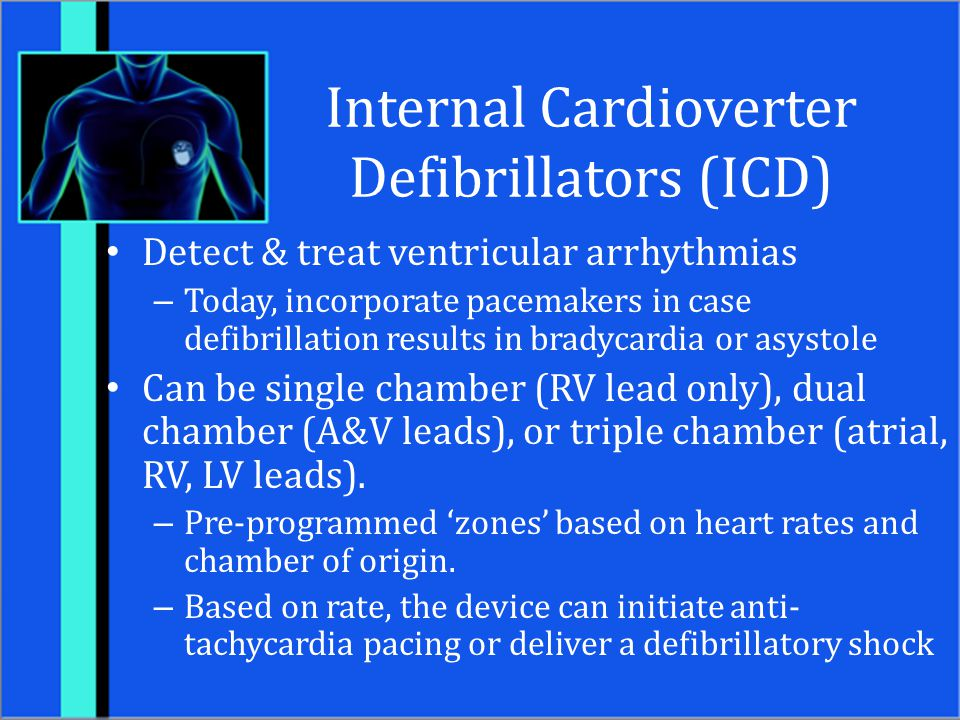 Internal Cardioverter Defibrillators (ICD)