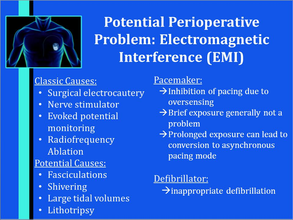 Potential Perioperative Problem: Electromagnetic Interference (EMI)