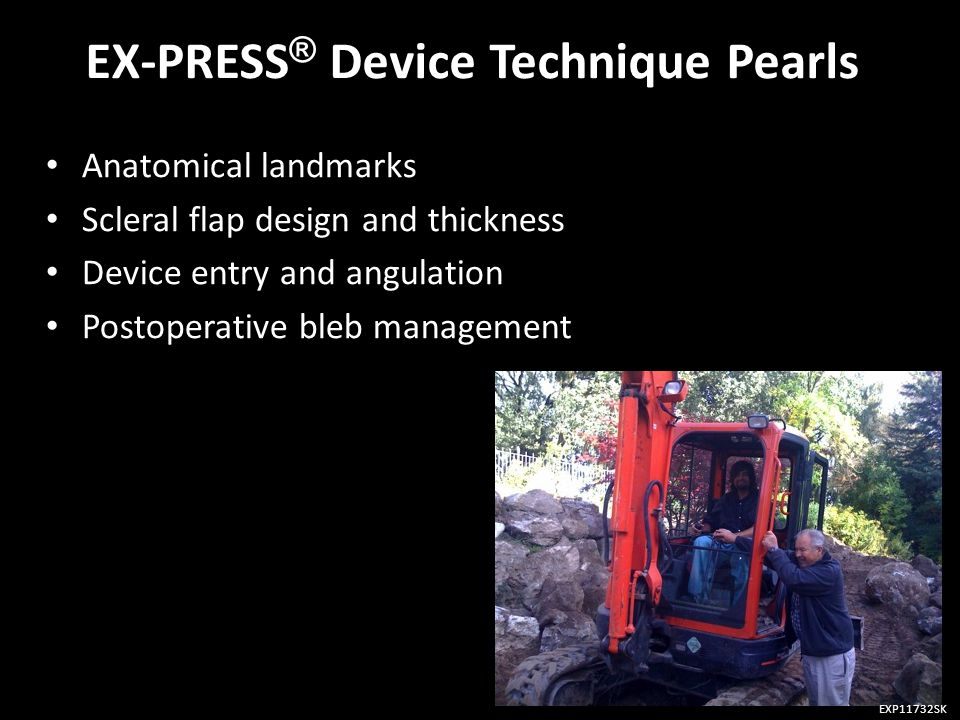 EX-PRESS® Device Technique Pearls