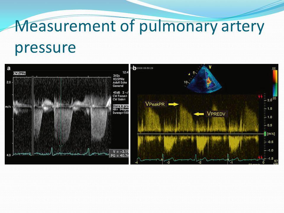 Measurement of pulmonary artery pressure
