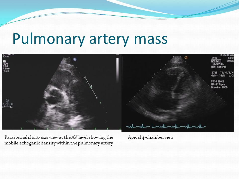 Pulmonary artery mass Parasternal short-axis view at the AV level showing the mobile echogenic density within the pulmonary artery.