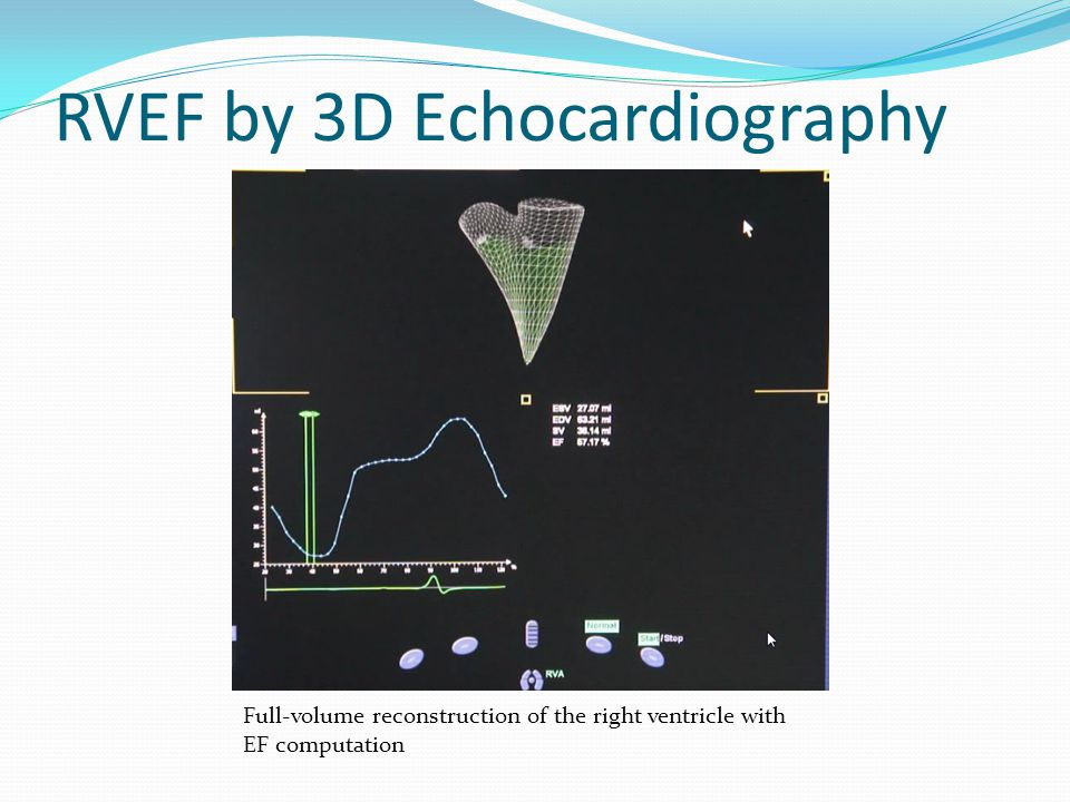 RVEF by 3D Echocardiography