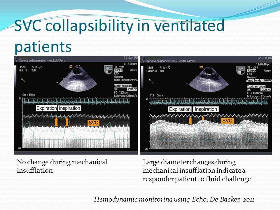 SVC collapsibility in ventilated patients