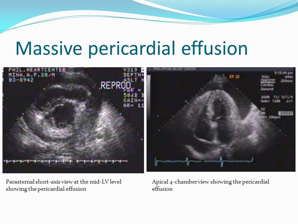 Massive pericardial effusion