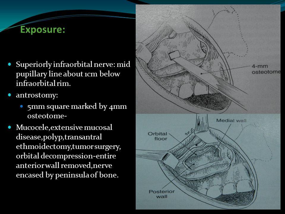 Exposure: Superiorly infraorbital nerve: mid pupillary line about 1cm below infraorbital rim. antrostomy: