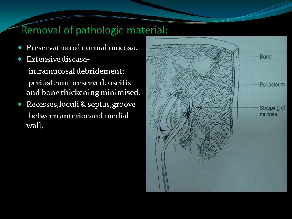 Removal of pathologic material: