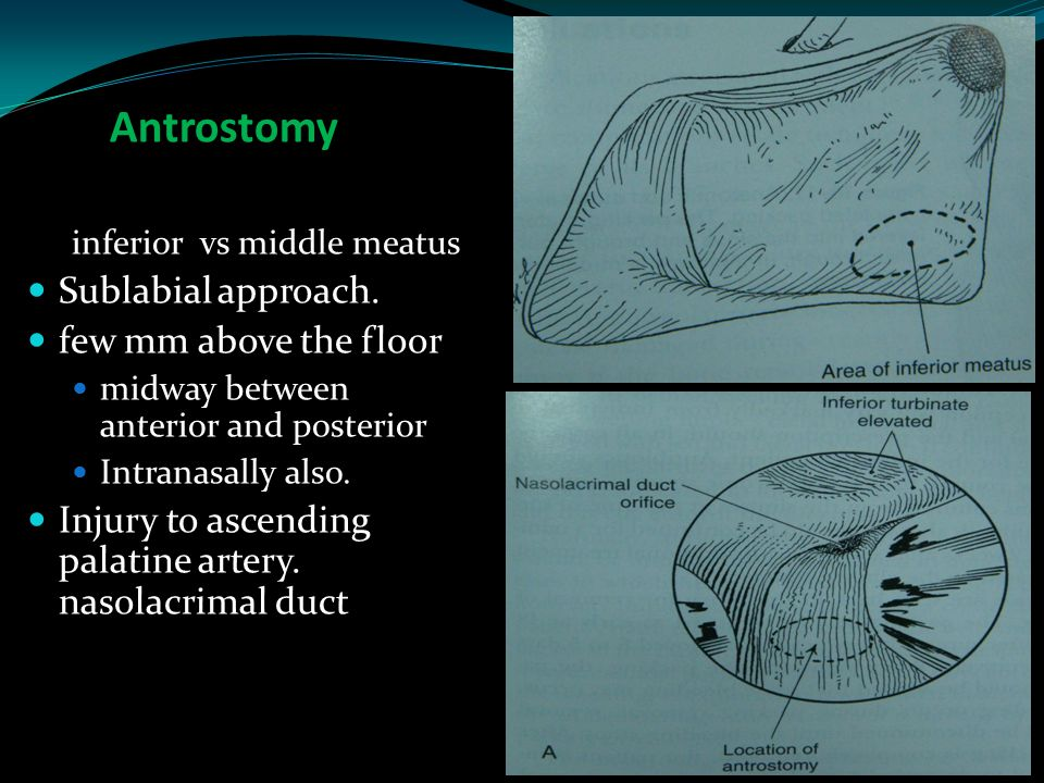 Antrostomy Sublabial approach. few mm above the floor