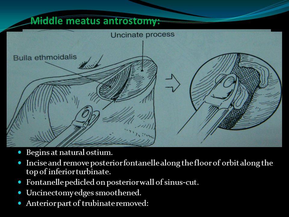 Middle meatus antrostomy: