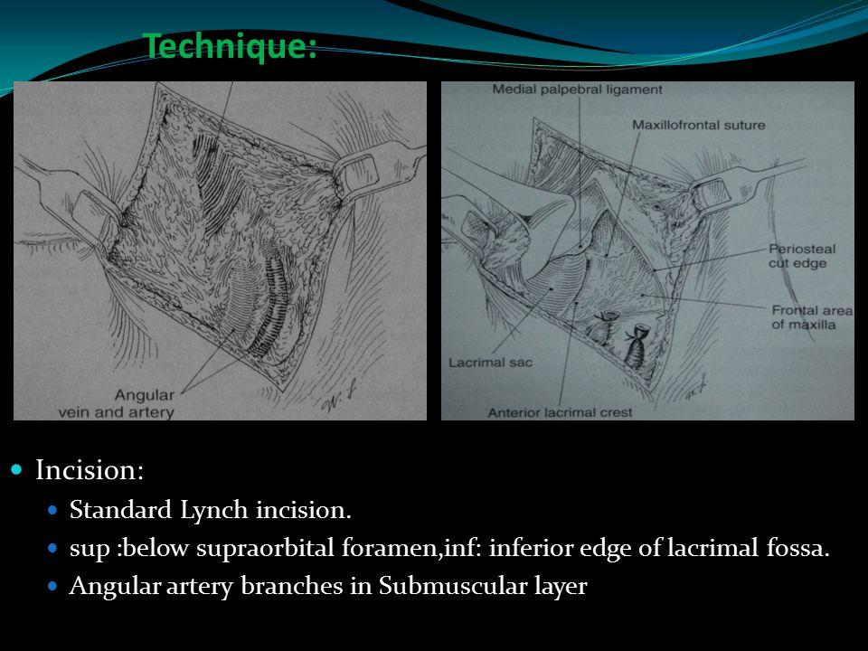 Technique: Incision: Standard Lynch incision.