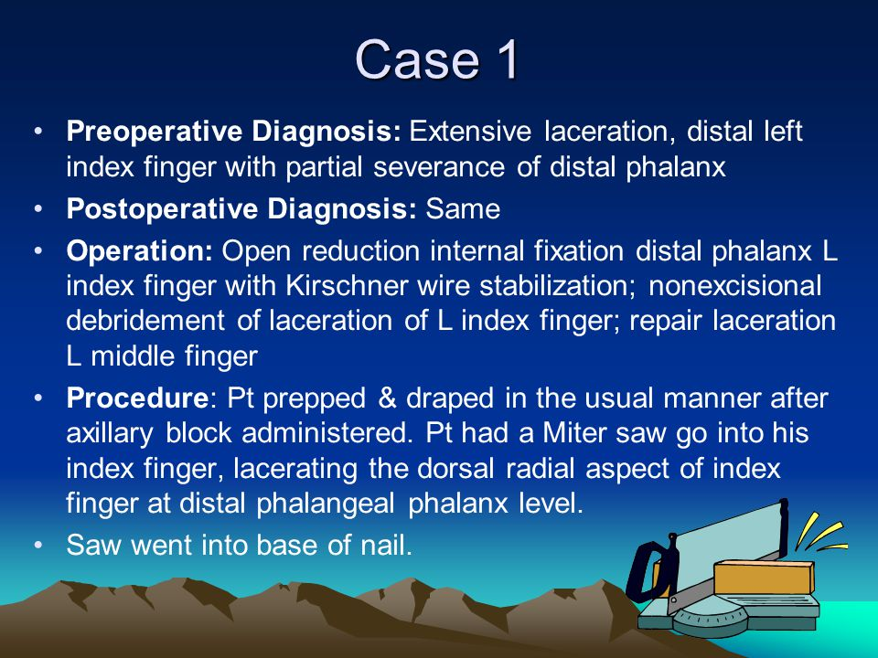 Case 1 Preoperative Diagnosis: Extensive laceration, distal left index finger with partial severance of distal phalanx.
