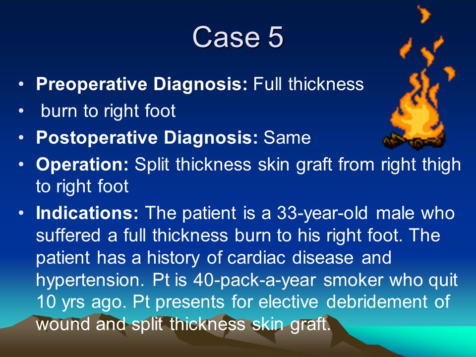 Case 5 Preoperative Diagnosis: Full thickness burn to right foot