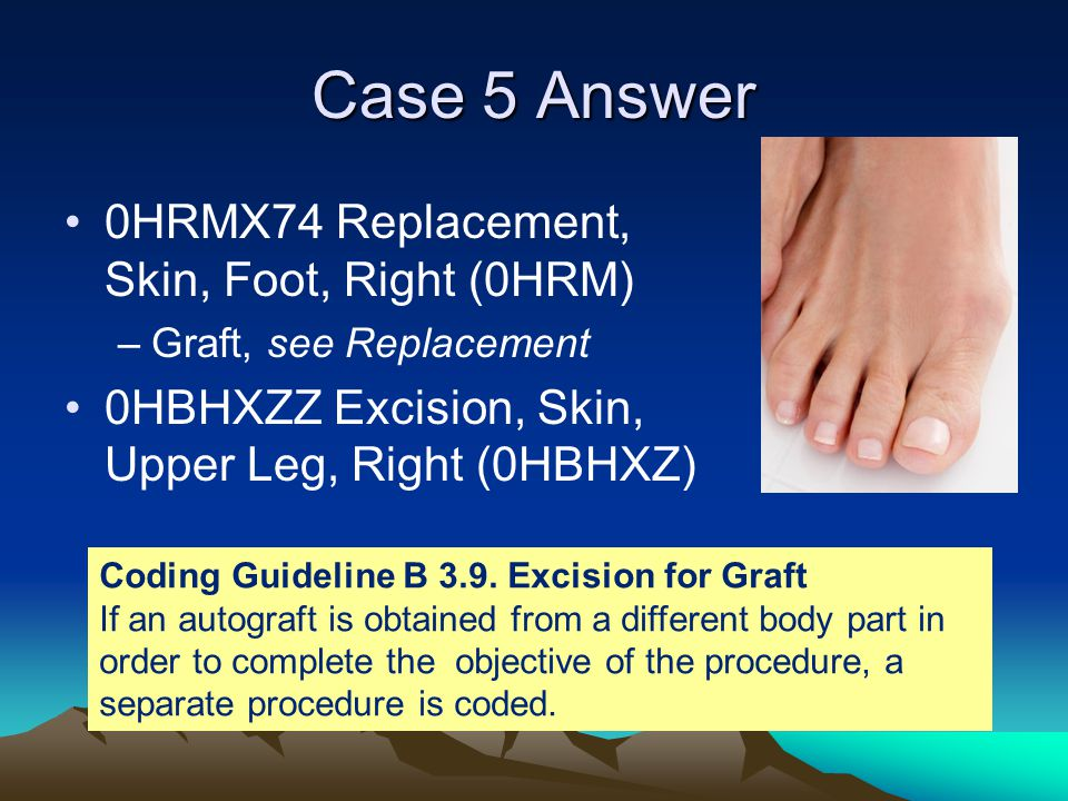 Case 5 Answer 0HRMX74 Replacement, Skin, Foot, Right (0HRM)