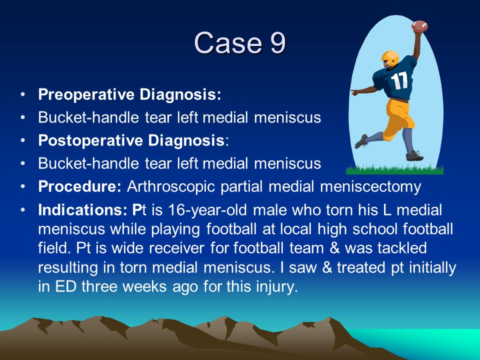 Case 9 Preoperative Diagnosis: Bucket-handle tear left medial meniscus