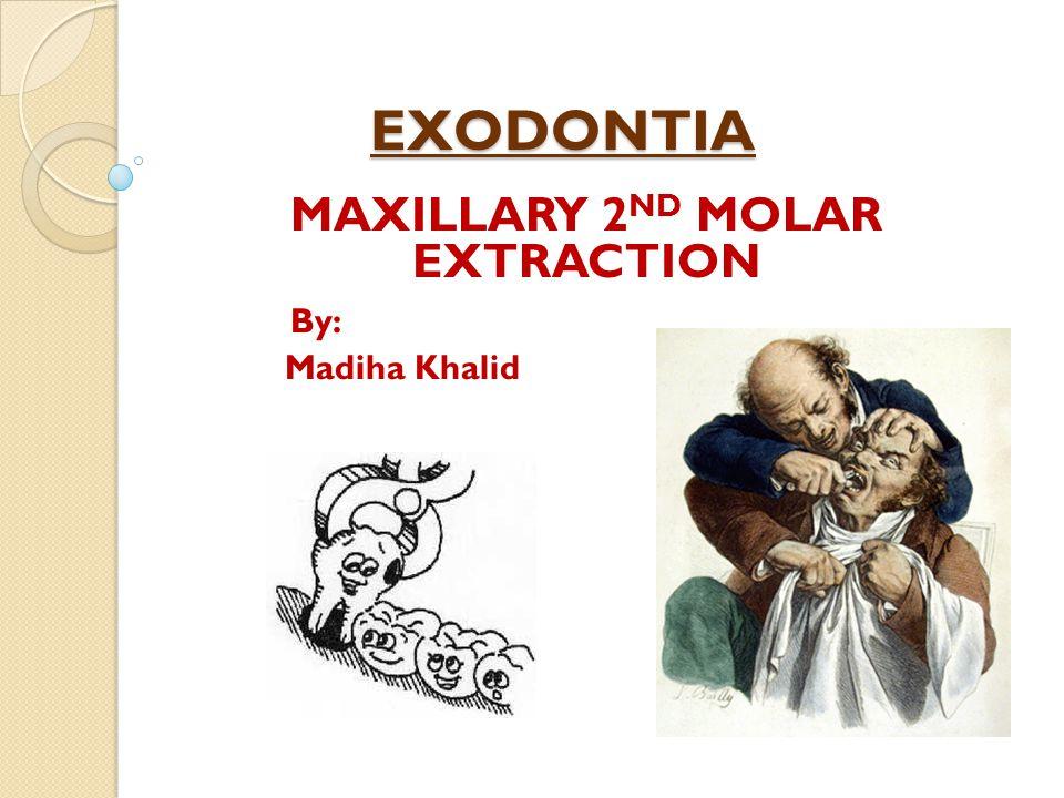 MAXILLARY 2ND MOLAR EXTRACTION By: Madiha Khalid