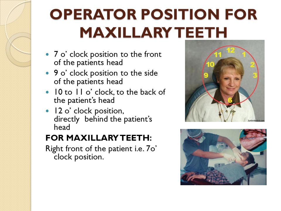OPERATOR POSITION FOR MAXILLARY TEETH