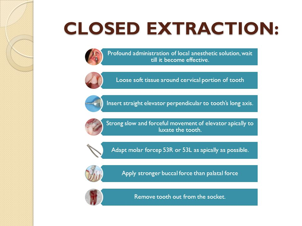 CLOSED EXTRACTION: Profound administration of local anesthetic solution, wait till it become effective.