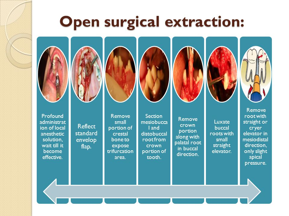 Open surgical extraction: