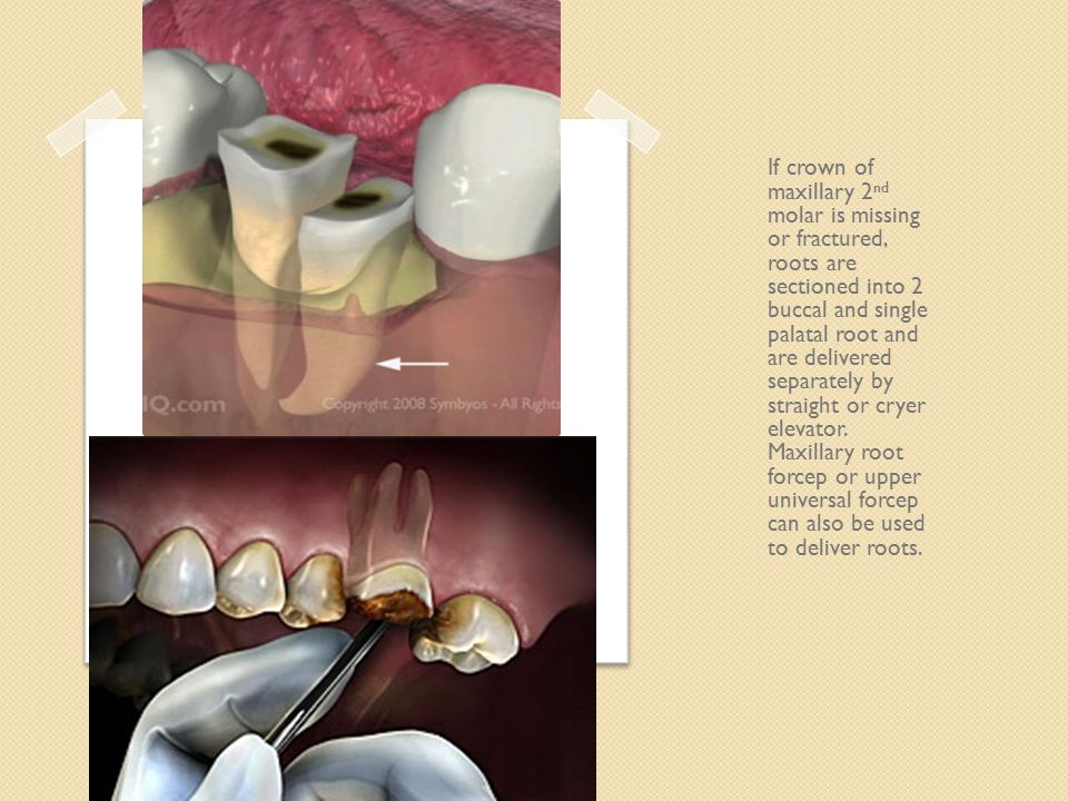 If crown of maxillary 2nd molar is missing or fractured, roots are sectioned into 2 buccal and single palatal root and are delivered separately by straight or cryer elevator.