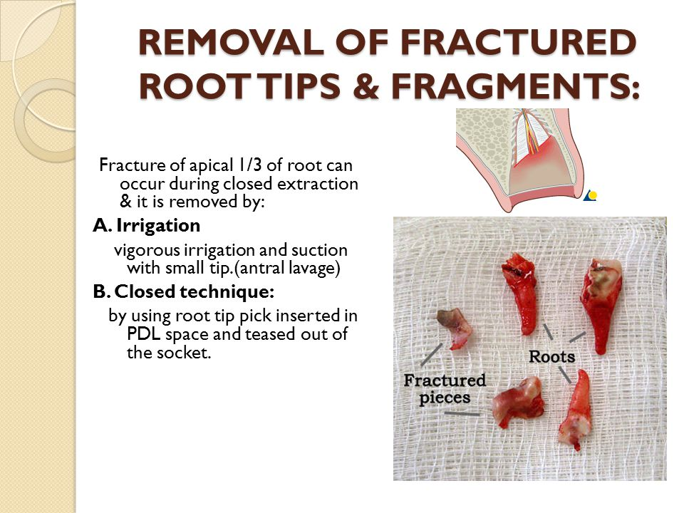 REMOVAL OF FRACTURED ROOT TIPS & FRAGMENTS: