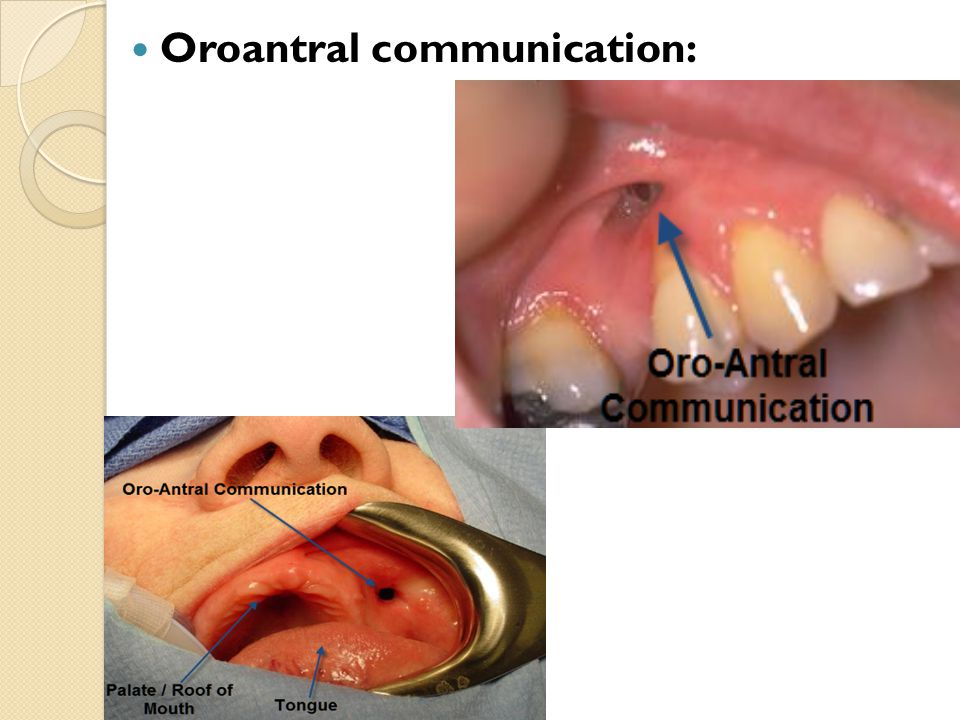 Oroantral communication: