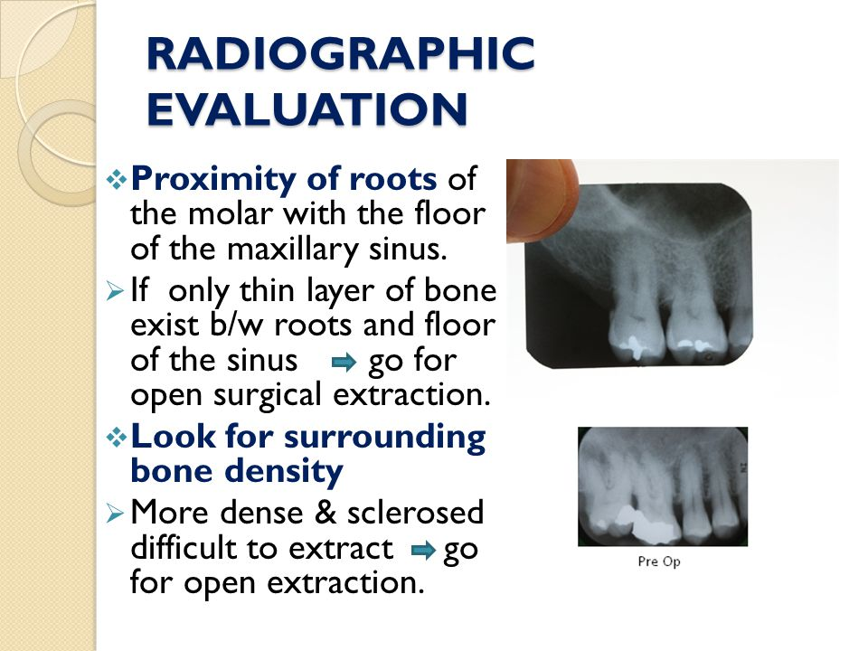 RADIOGRAPHIC EVALUATION