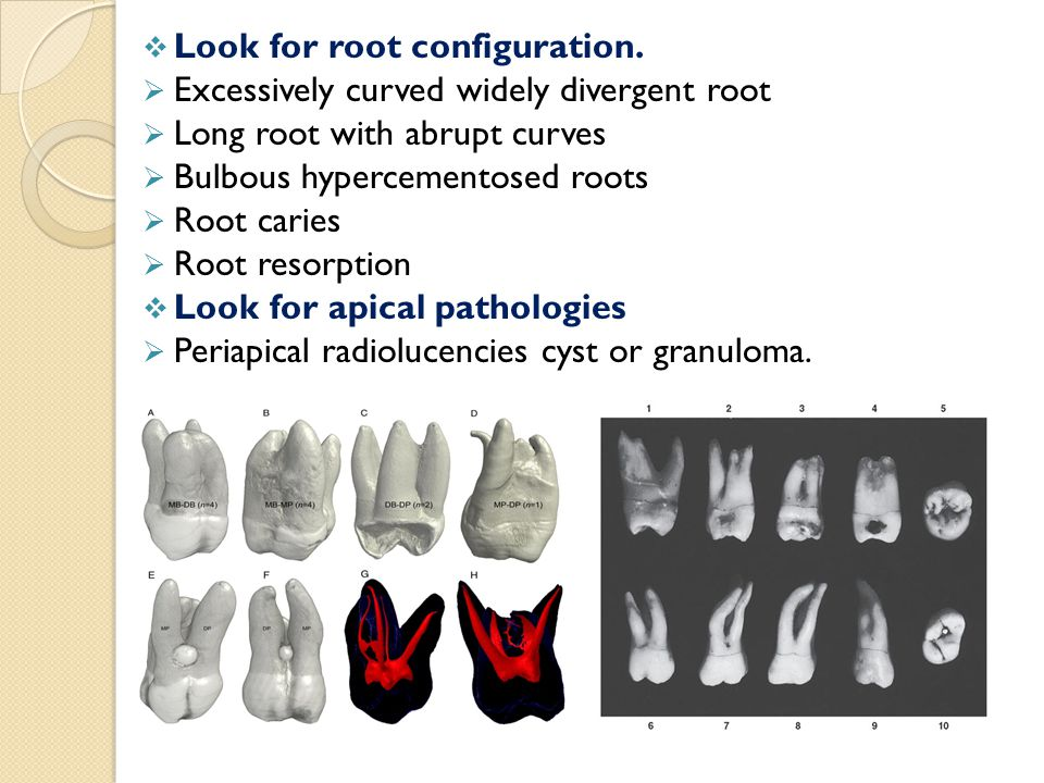 Look for root configuration.