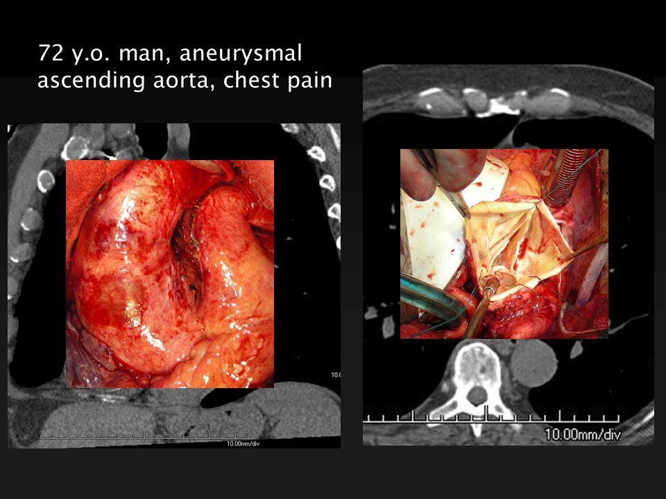 72 y.o. man, aneurysmal ascending aorta, chest pain