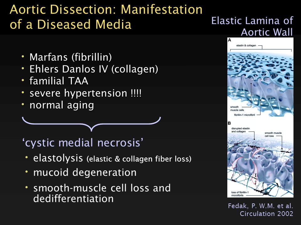 Aortic Dissection: Manifestation of a Diseased Media