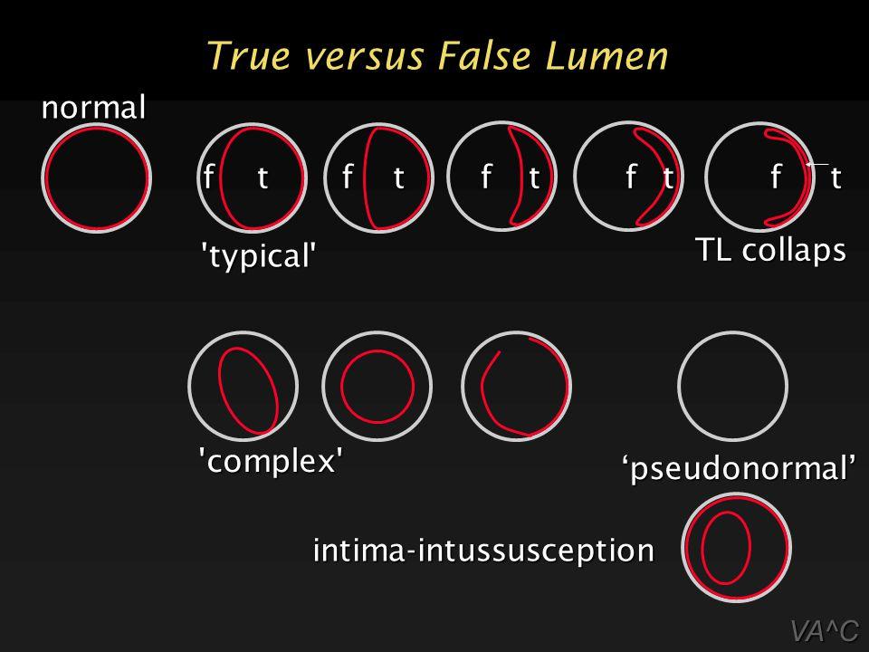 True versus False Lumen
