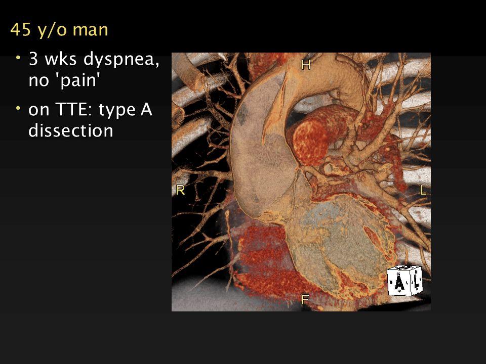 45 y/o man 3 wks dyspnea, no pain on TTE: type A dissection