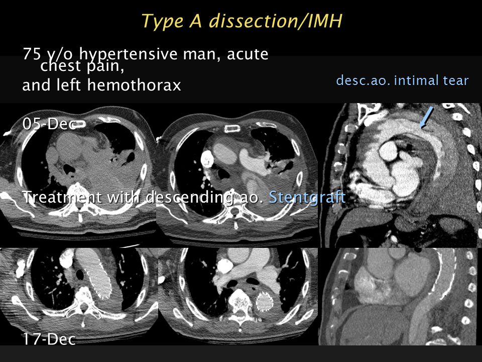 Type A dissection/IMH 75 y/o hypertensive man, acute chest pain,