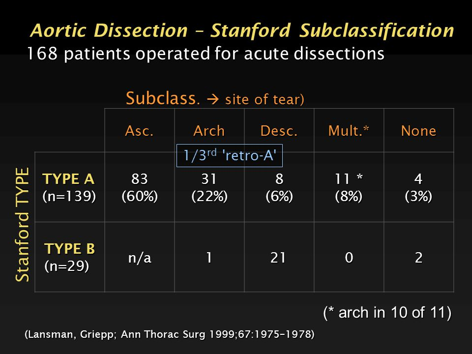 Aortic Dissection – Stanford Subclassification