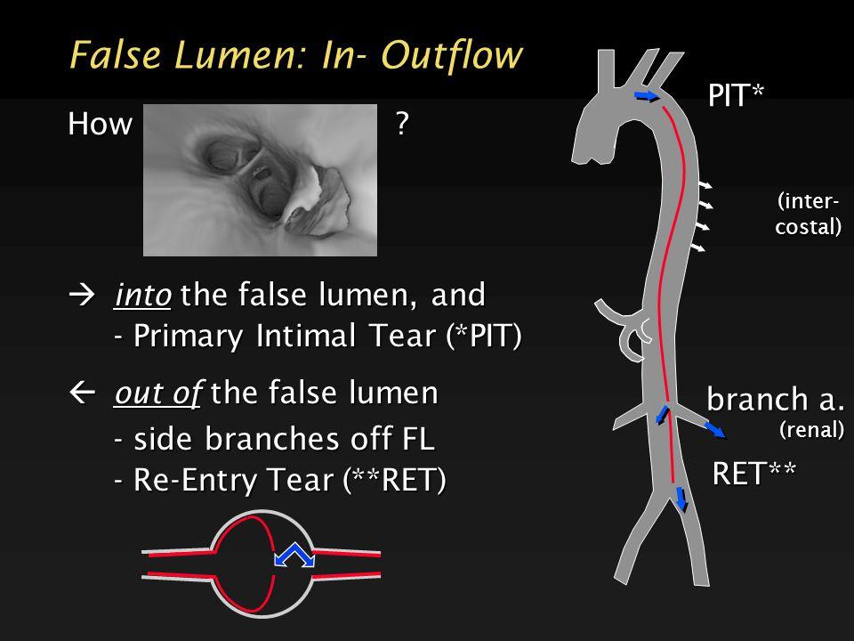 False Lumen: In- Outflow