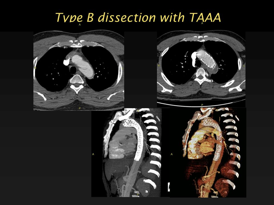 Type B dissection with TAAA