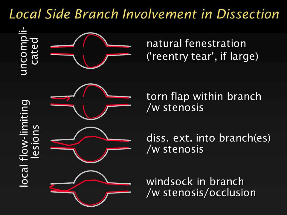 Local Side Branch Involvement in Dissection