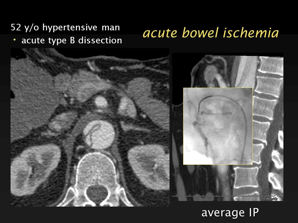 acute bowel ischemia average IP 52 y/o hypertensive man