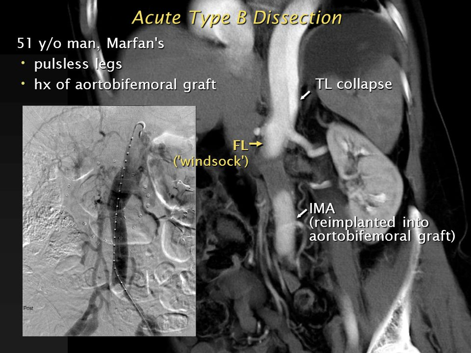 Acute Type B Dissection