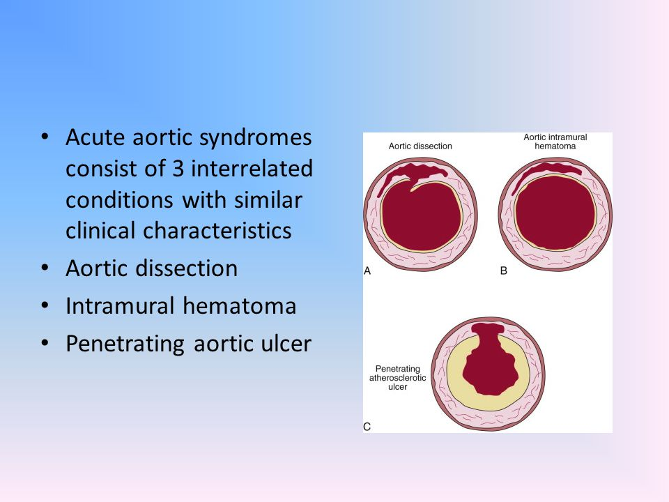Acute aortic syndromes consist of 3 interrelated conditions with similar clinical characteristics