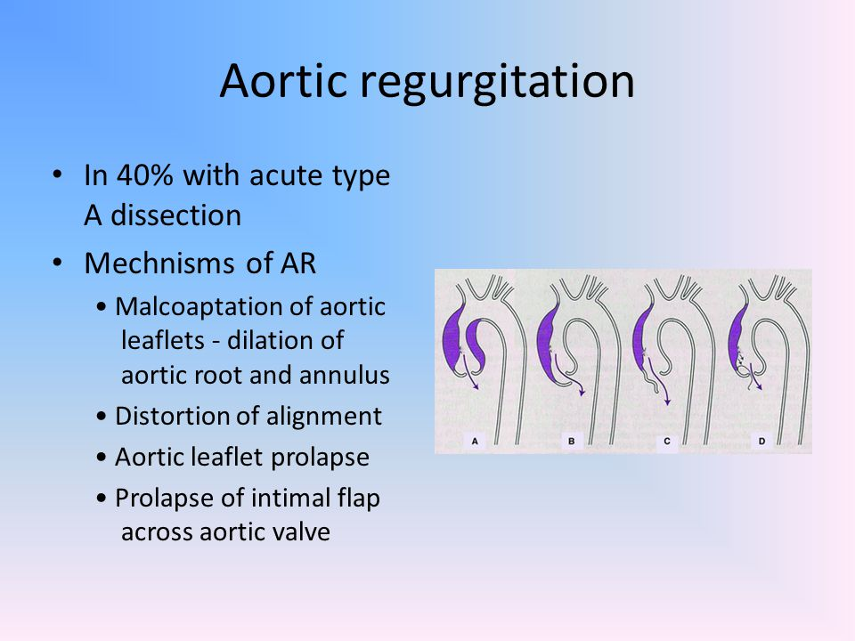 Aortic regurgitation In 40% with acute type A dissection
