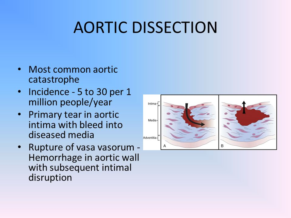 AORTIC DISSECTION Most common aortic catastrophe