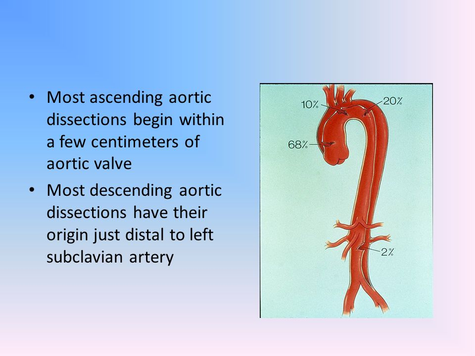Most ascending aortic dissections begin within a few centimeters of aortic valve