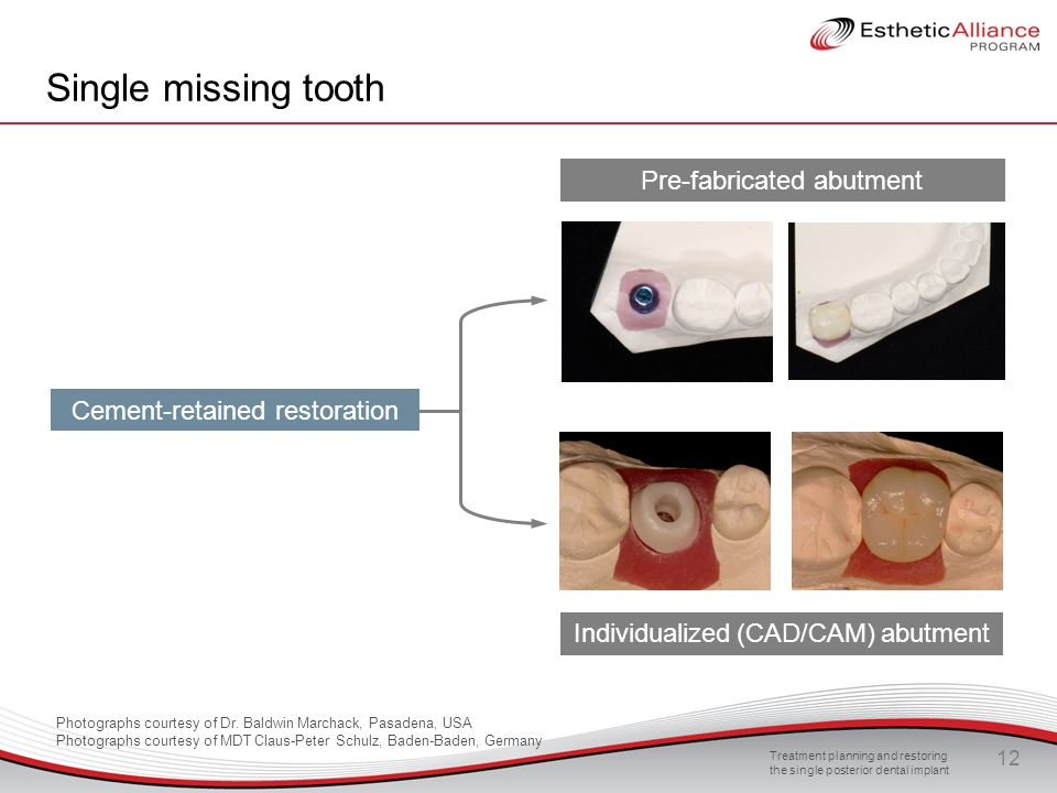 Single missing tooth Pre-fabricated abutment