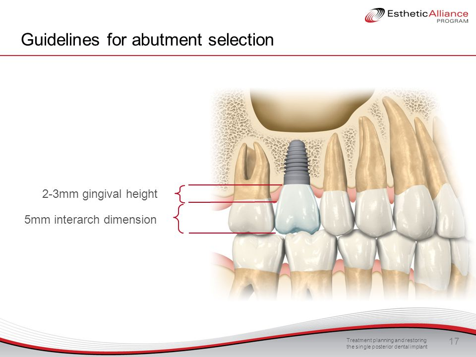 Guidelines for abutment selection