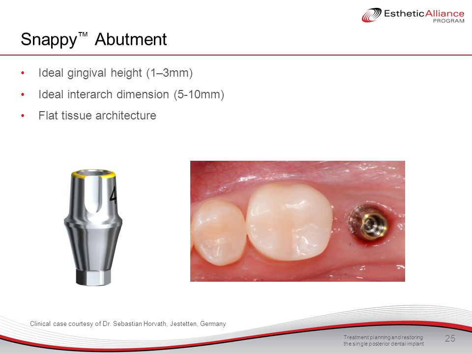 Snappy™ Abutment Ideal gingival height (1–3mm)